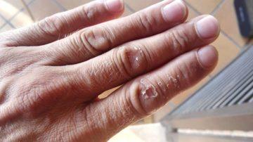 Candidapilz auf den Händen