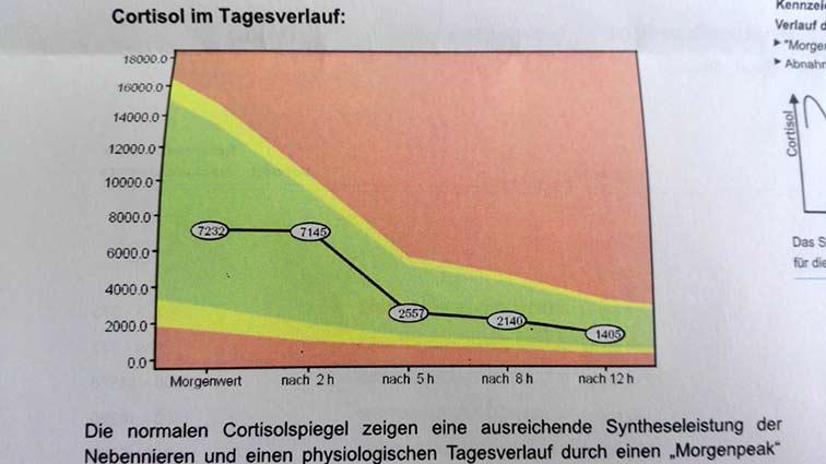 Cortisoltagesprofil nach Hydrocortisonbehandlung