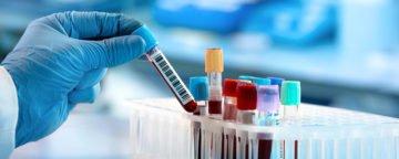 Hashimoto-Diagnose: Wie kann man die Hashimoto-Thyreoiditis enttarnen?