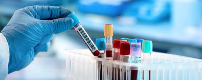 Die Diagnose der Hashimoto-Thyreoiditis – was gilt es zu beachten?