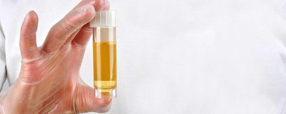 HPU / KPU: Eine Stoffwechselstörung mit fatalen Folgen für den Organismus