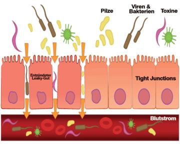 Funktionsweise des durchlässigen Darms (Leaky-Gut)