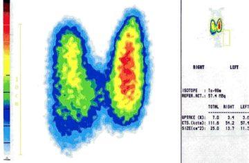 Szintigramm bei Hashimoto-Diagnose: Hashimoto Typ A mit disseminierten Autonomien vor Radiojodtherapie