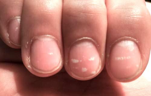 Zinkmangel: Weiße Flecken auf den Fingernägeln